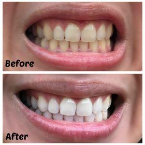 7 Benefits Of Having Whiter Teeth Absolute Dental