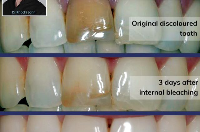 When It Comes To Tooth Whitening What Is Right And What Is Not Absolute Dental